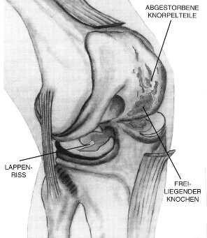 Eine Knorpelglättung als Auffrischungskur für das Kniegelenk