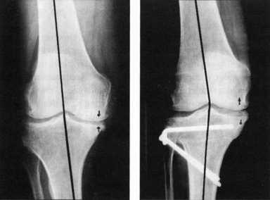 Umstellungsosteotomie knie komplikationen