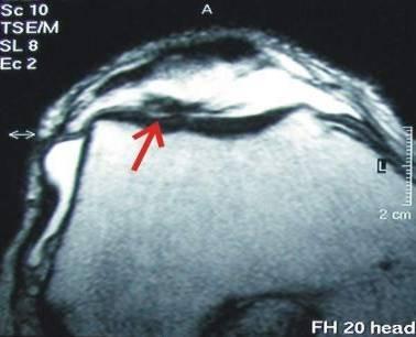 knie behandlung mit hyaluronsäure