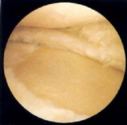 mediale gonarthrose grad 2