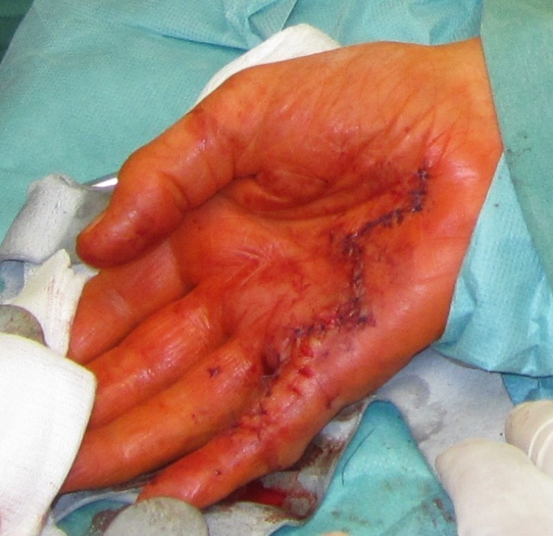 What is Dupuytren's contracture?