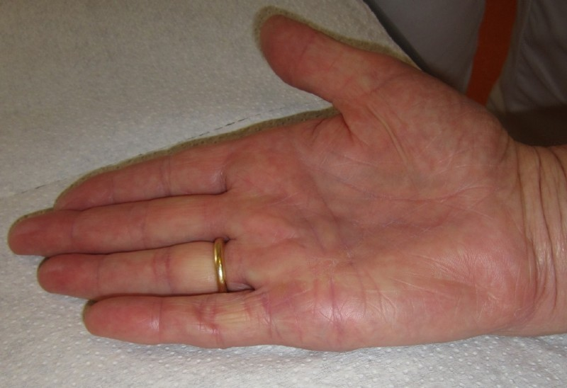 how to get rid of ganglion cyst on finger